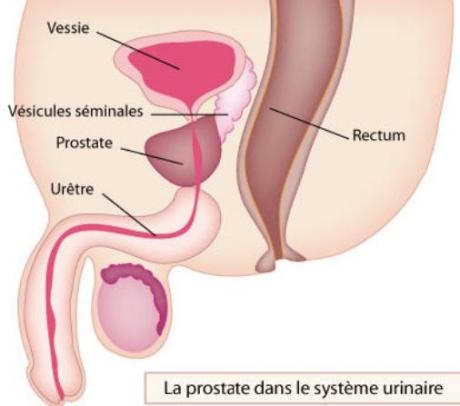 prostate-6-1